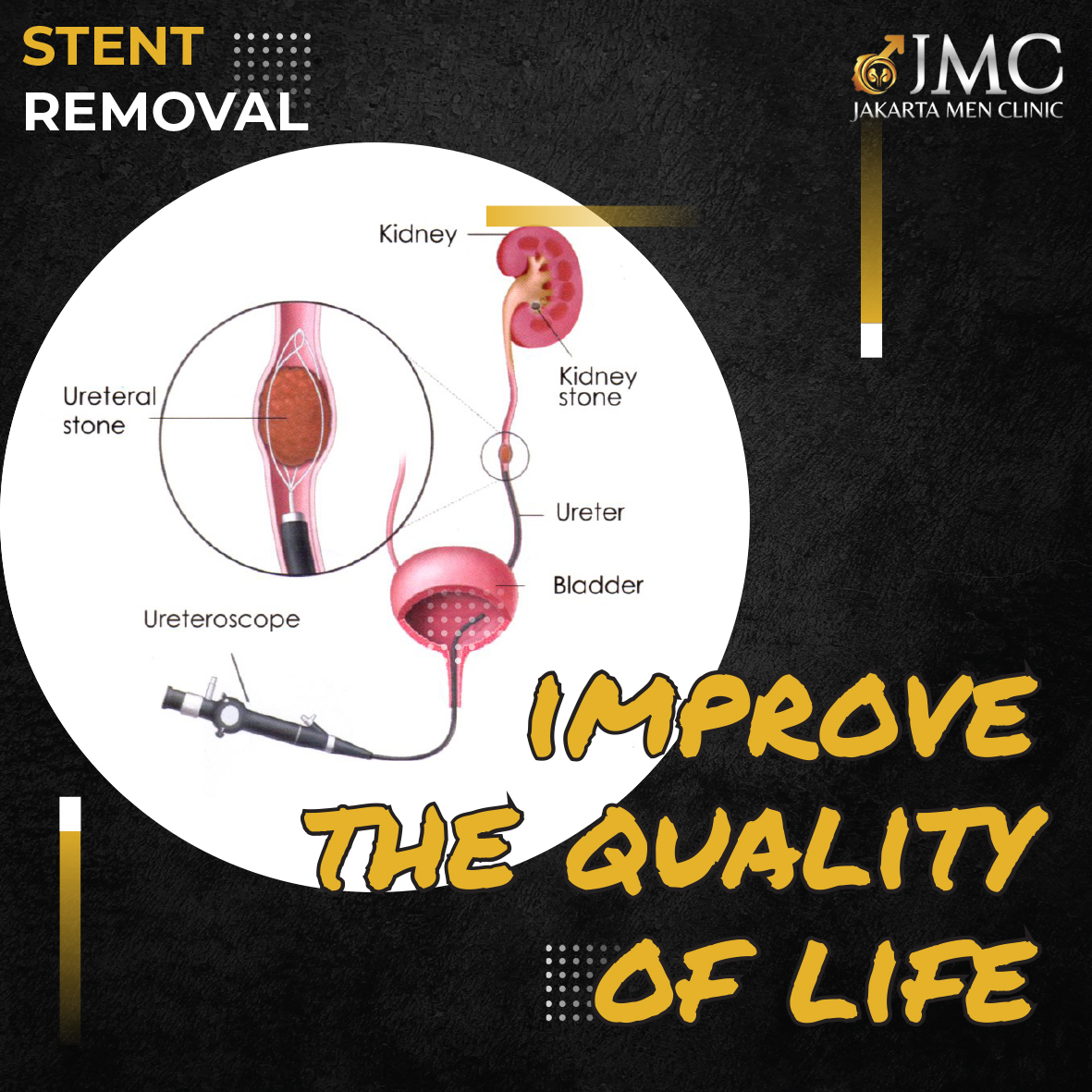 STENT REMOVAL